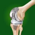 Биологически активные добавки уменьшают потерю мышечной массы после операции по протезированию колена
